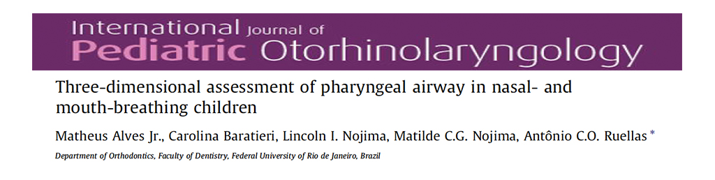 Three-Dimensional Assessment of pharyngeal Airway in Nasal-and Mouth-Breathing Children